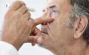 اختلال چشمی پس از تزریق واکسن کرونا